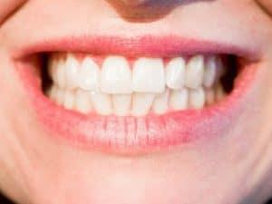 hacer un diente
